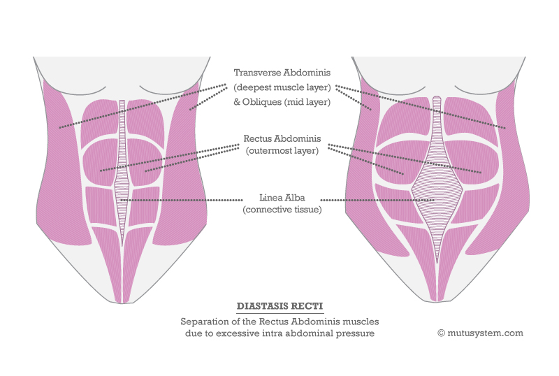 A proven system designed to fix Diastasis Recti with Exercise