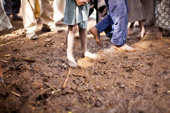 ethiopian feet