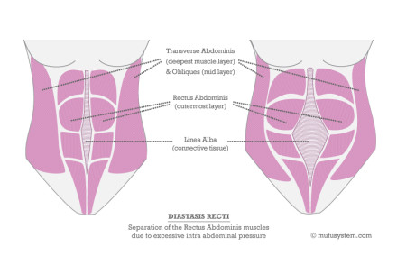 A diastasis expert answers all of your questions!  Alysa Bajenaru interviews Wendy Powell of MuTu System on InspiredRD.com