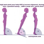 How Better Alignment Helps Fix Diastasis Recti